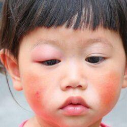 Penyakit Lupus Ternyata Bisa Menyerang Anak - Anak Loh