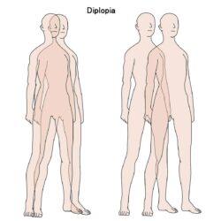 Mengenal Penyakit Diplopia Yang Umumnya Menyerang Mata